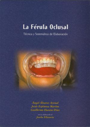 la ferula oclusal
