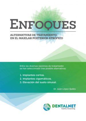 ebook_ENFOQUES_201403_Page_01